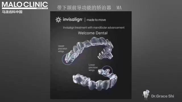 带下颌前导功能的矫治器
