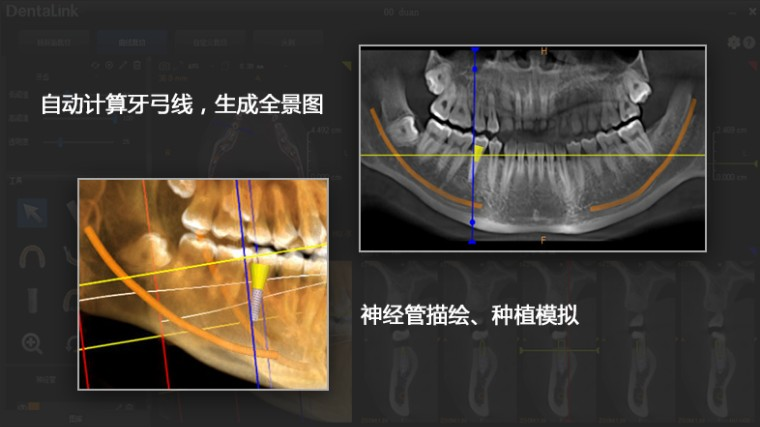 牙医管家口腔管理软件专业版V3.15.900更新说明
