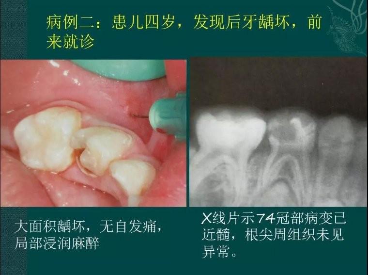 四岁患儿牙龋坏治疗过程课程ppt